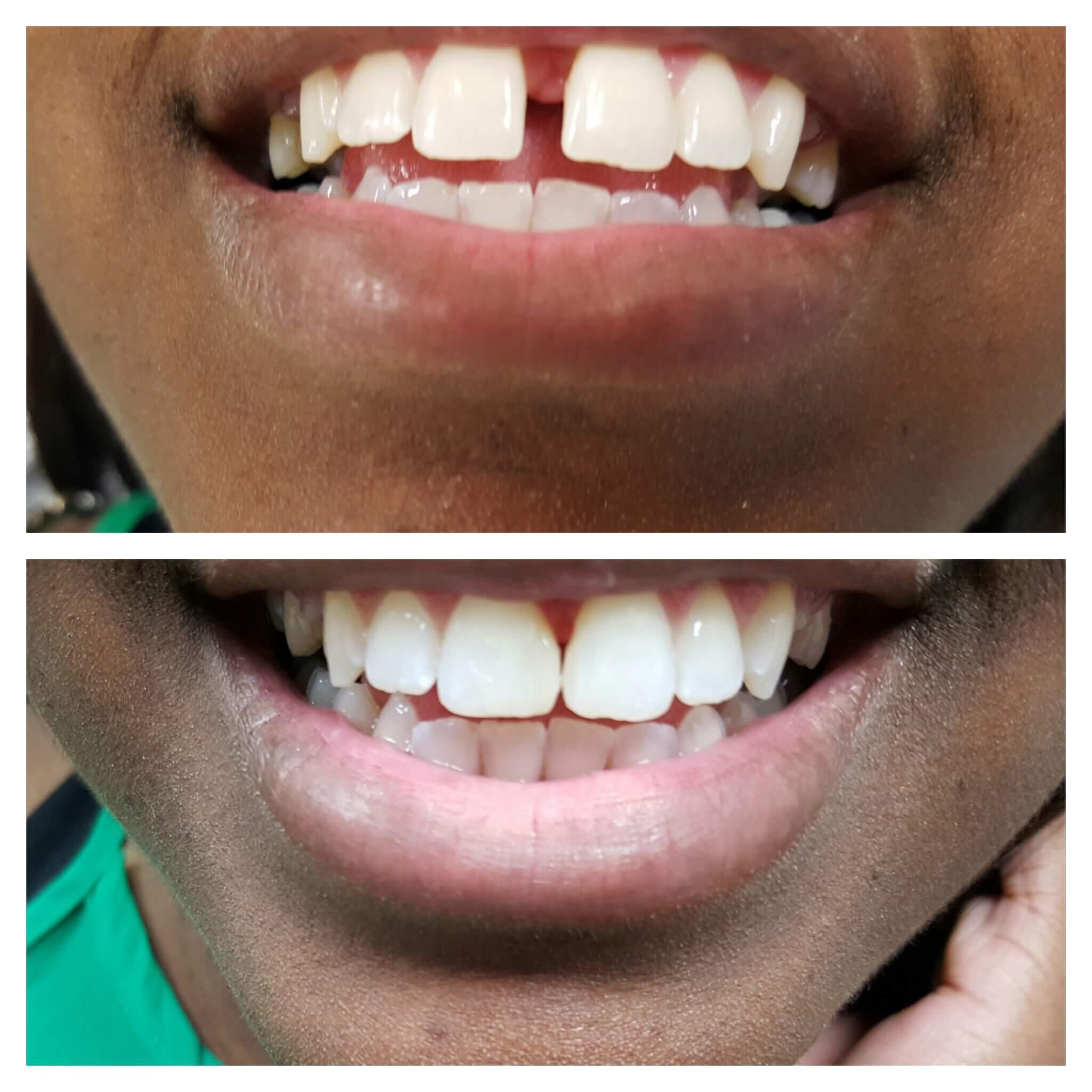Do You Mind Your Gap Wave Dental