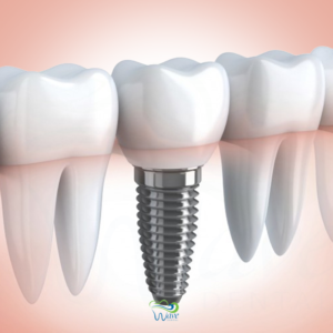 Dental implants in Houston. Wave Dental
