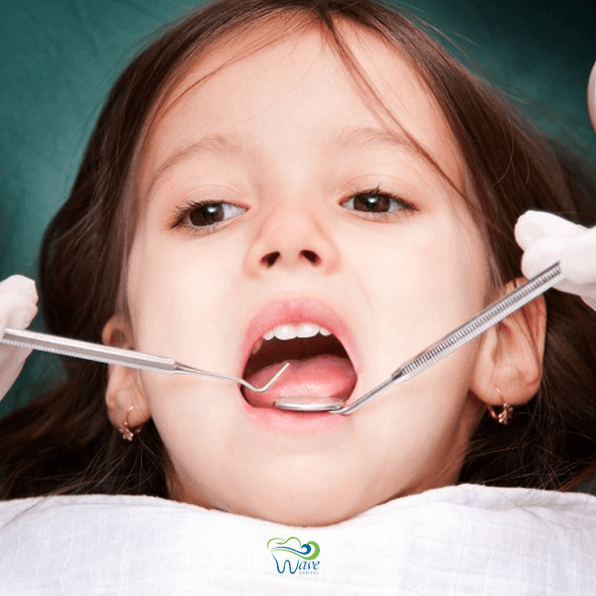 Pediatric dentist in Houston. Wave Dental
