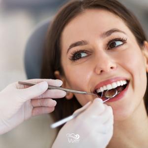 Teeth Cleaning in Houston. Wave Dental