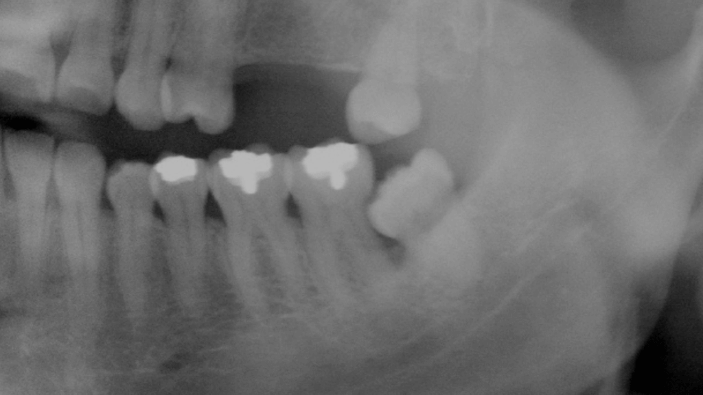 In this x-ray, we can see a partially impacted wisdom tooth that has led to periodontal disease, with heavy plaque accumulation causing significant bone loss around the tooth next to it. Bone loss, in turn, makes the otherwise healthy tooth more likely to require extraction in the future.
