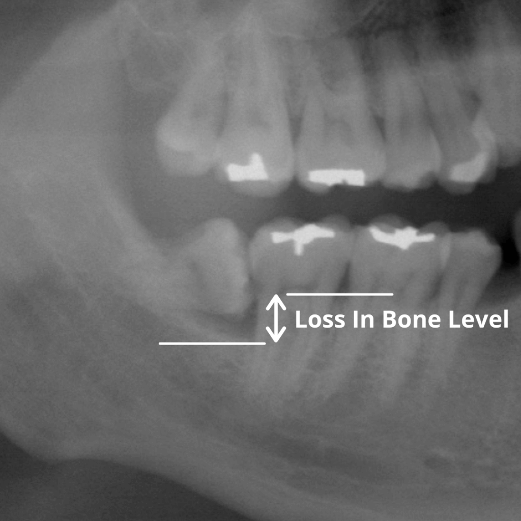 This x-ray shows an impacted wisdom tooth causing damage to the tooth next to it, which may eventually need to be extracted as well.