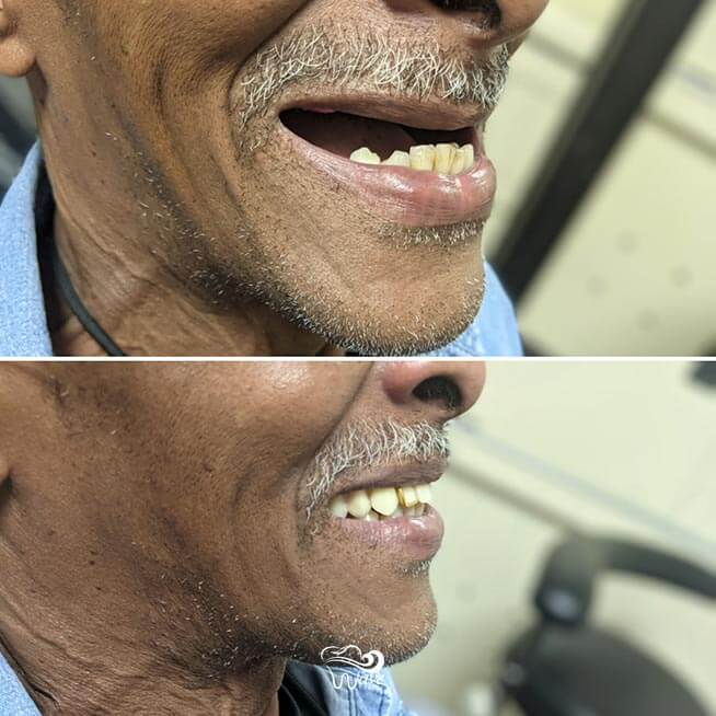 Dentures provide many life-changing benefits in addition to the ability to smile.