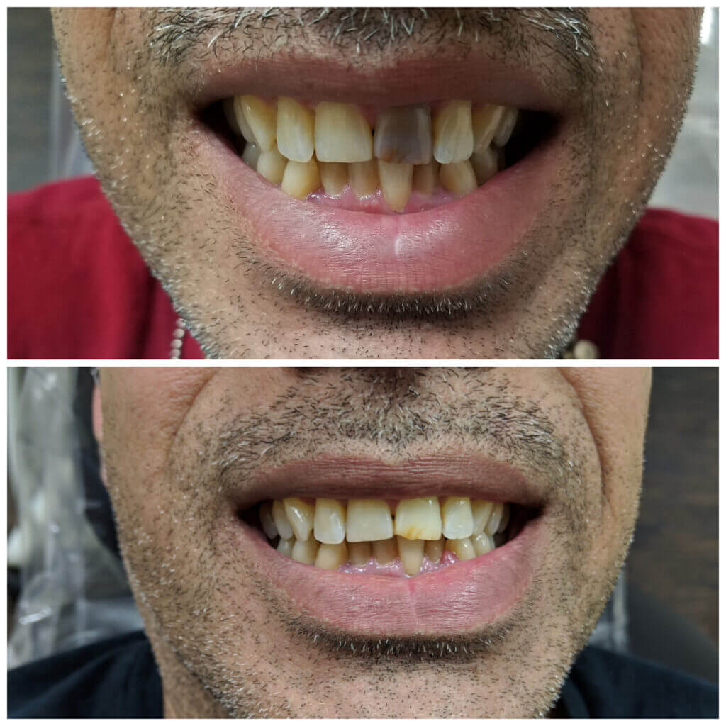 This tooth was treated with a root canal and about 4 weeks of internal whitening. My patient was thrilled that he did not need a crown or veneer after all!