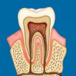 Root Canal in Houston. Wave Dental