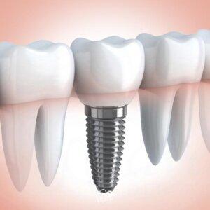 Dental implants in Houston. Wave Dental