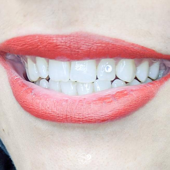 Tooth gems in Houston from Wave Dental