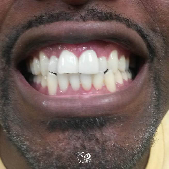 After teeth whitening and tooth replacement.