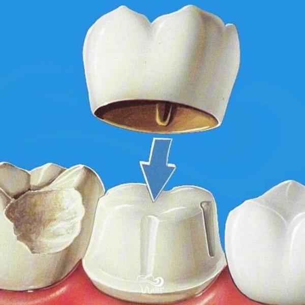 Dental crowns in Houston. Wave Dental