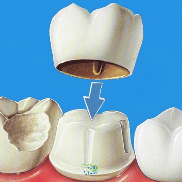 Dental crowns in Houston. Wave Dental