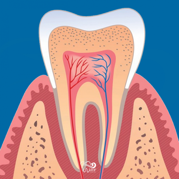 Periodontist in Houston. Wave Dental