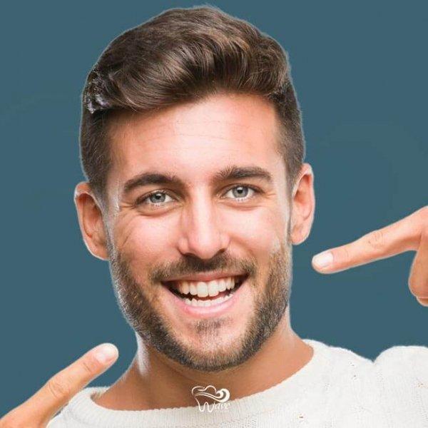 Smile makeovers in Houston. Wave Dental