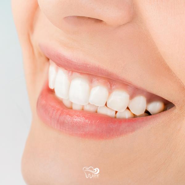 Teeth Whitening in Houston. Wave Dental